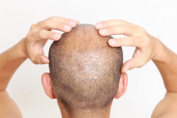Заметно теряете волосы? Срочно сдайте анализы!