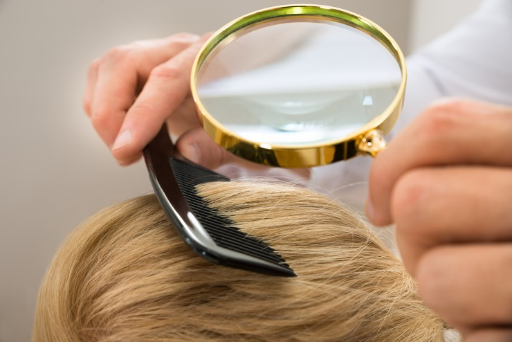Перхоть при покраснении кожи головы - лечение препаратами и отварами