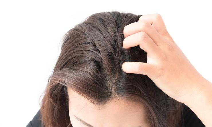 Как лечить себорею на голове в домашних условиях народными средствами