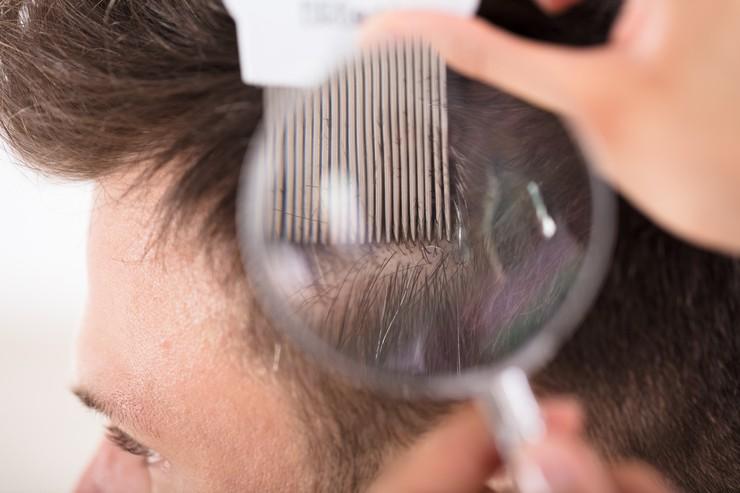 Обзор шампуней от мужской перхоти